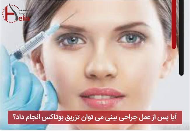 آیا پس از عمل جراحی بینی می توان تزریق بوتاکس انجام داد؟