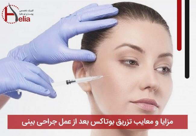 مزایا و معایب تزریق بوتاکس بعد از عمل جراحی بینی