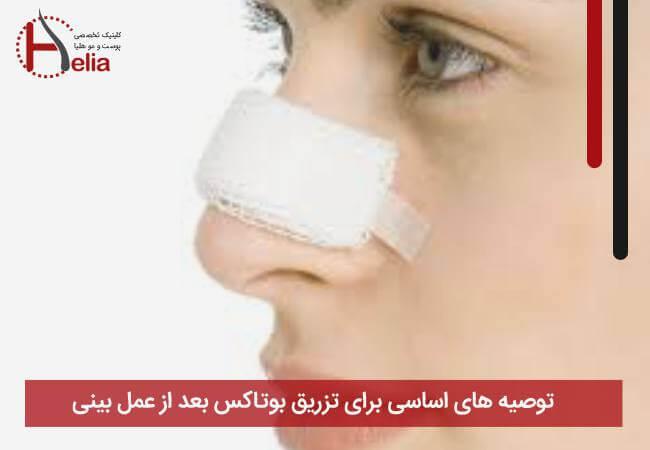 توصیه های اساسی برای تزریق بوتاکس بعد از عمل بینی