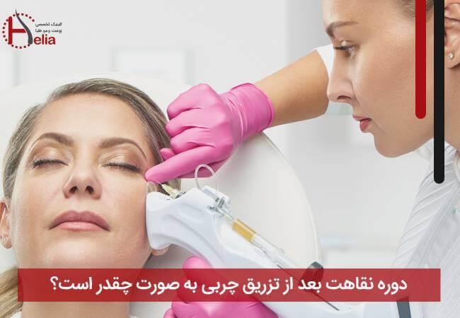 تصویر از دوره نقاهت بعد از تزریق چربی به صورت چقدر است ؟