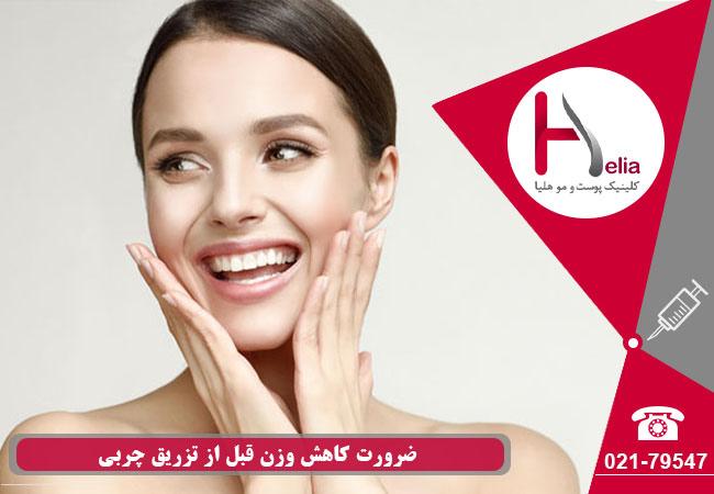 تصویر از آیا کاهش وزن قبل از تزریق چربی یک امر مهم است