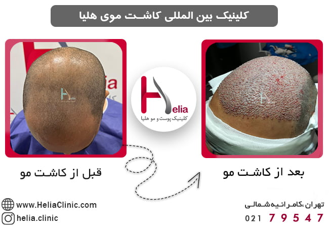 What will happen after hair transplant?