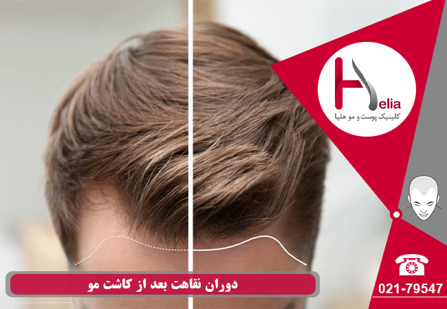 Recovery period after hair transplantation