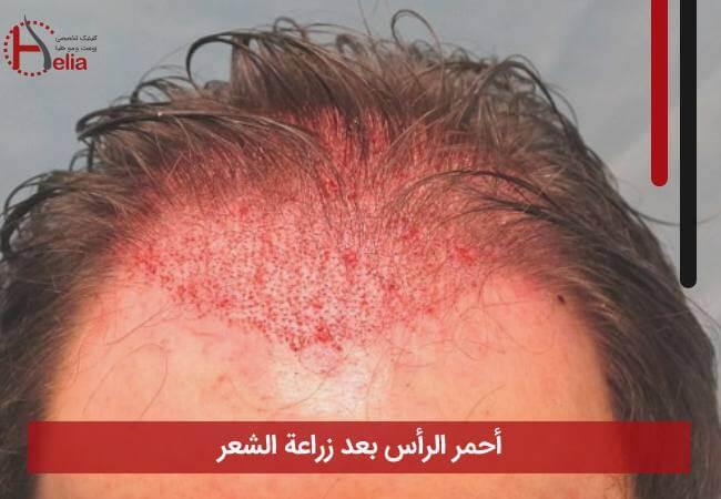 صورة أحمر الرأس بعد زراعة الشعر