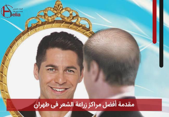 مقدمة أفضل مراکز زراعة الشعر فی طهران
