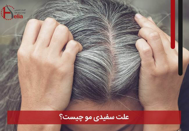 تصویر از علت سفیدی مو چیست ؟