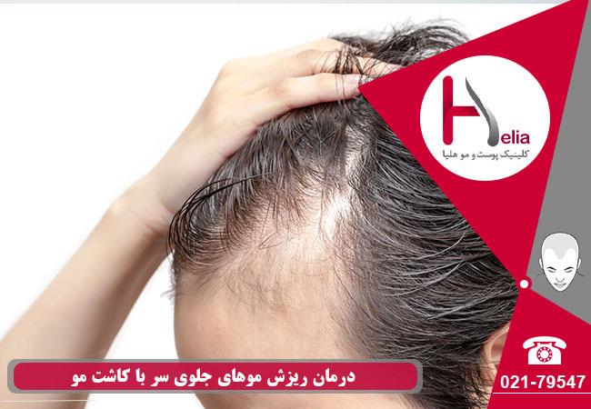 تصویر از درمان ریزش موهای جلوی سر با کاشت مو