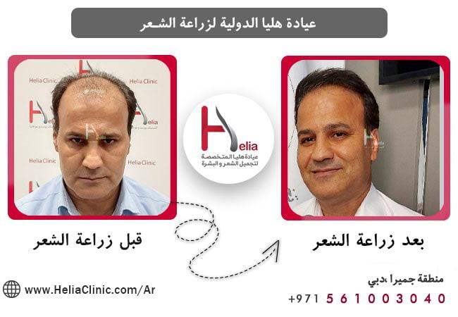 آثار زراعة الشعر على جمال الوجه