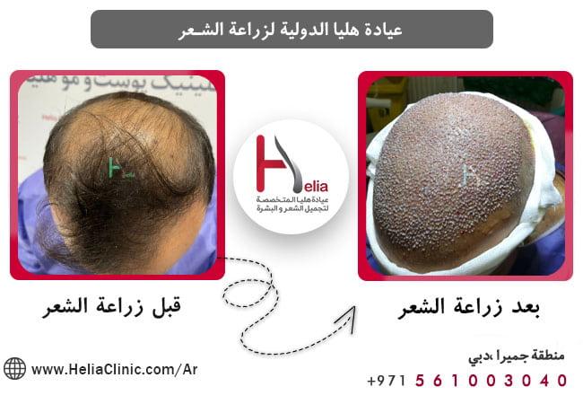 تکلفة زراعة الشعر بدون حلاقة