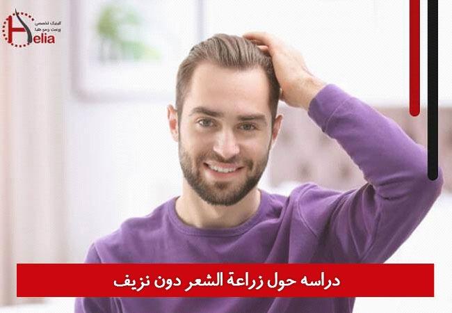 دراسه حول زراعة الشعر بدون نزیف