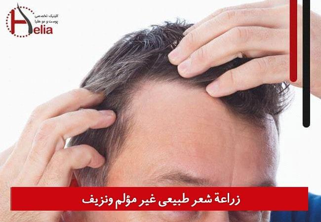 زراعة شعر طبیعی غیر مؤلم ونزیف
