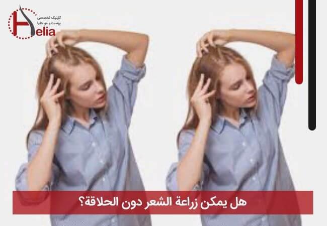 هل یمکن زراعة الشعر بدون حلاقة؟