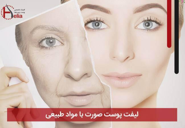تصویر از لیفت پوست صورت با مواد طبیعی