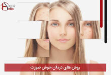 تصویر از روش های درمان جوش صورت