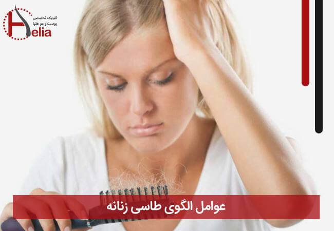 عوامل الگوی طاسی زنانه