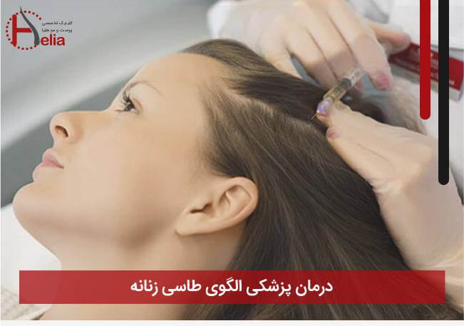درمان پزشکی الگوی طاسی زنانه: