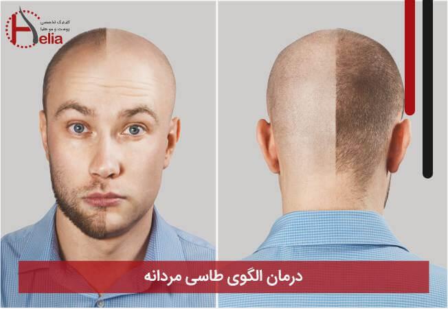 درمان الگوی طاسی مردانه
