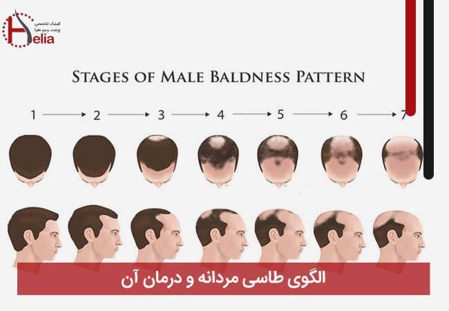 الگوی طاسی مردانه و درمان آن