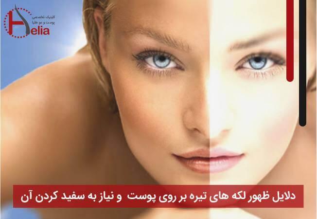 دلایل ظهور لکه های تیره بر روی پوست و نیاز به سفید کردن آن