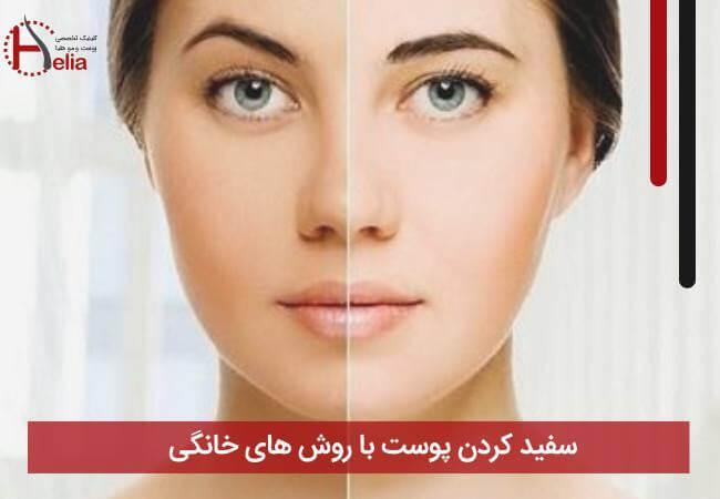 سفید کردن پوست با روش های خانگی