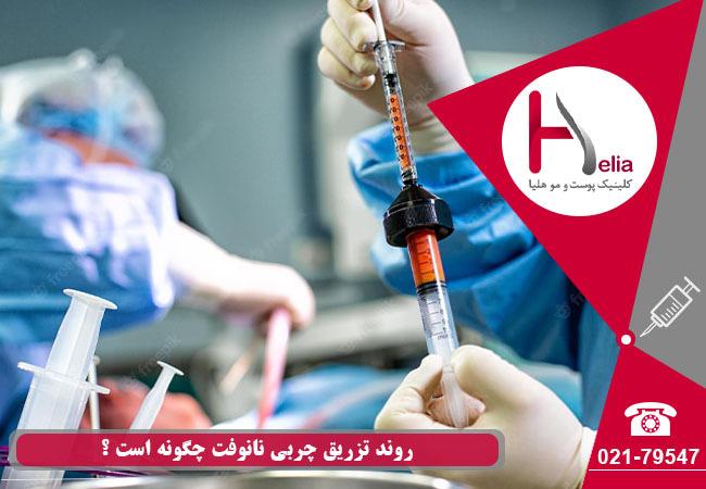 روند تزریق nano fat چگونه است ؟