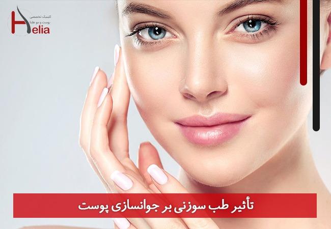 تصویر از تأثیر طب سوزنی بر جوانسازی پوست