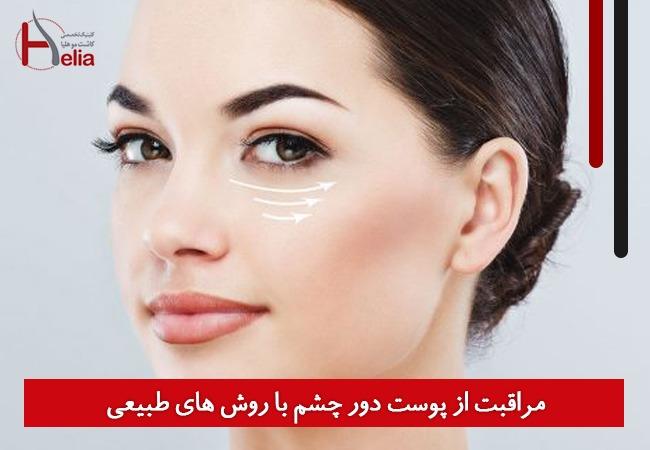 مراقبت از پوست دور چشم با روش های طبیعی