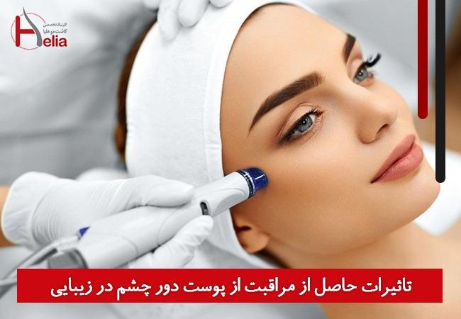 تاثیرات حاصل از مراقبت از پوست دور چشم در زیبایی