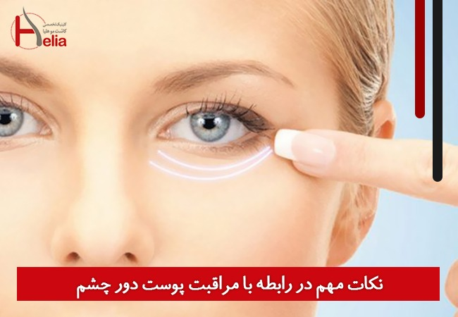 نکات مهم در رابطه با مراقبت پوست دور چشم