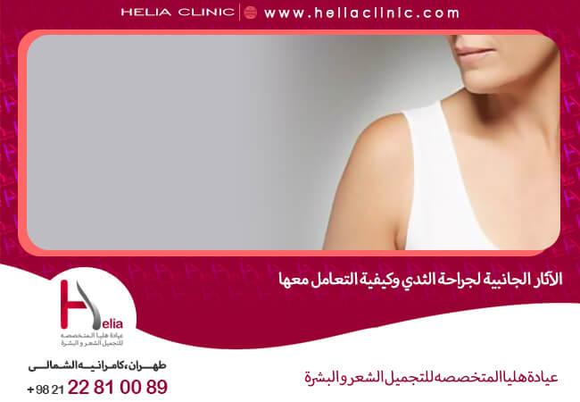 الآثار الجانبیة لجراحة الثدی وکیفیة التعامل معها