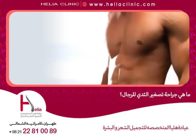 صورة ما هي جراحة تصغير الثدي للرجال ؟