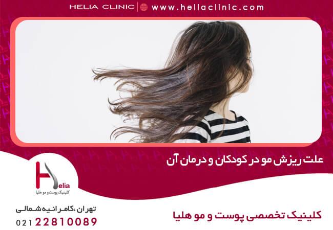 تصویر از علت ریزش مو در کودکان و درمان آن