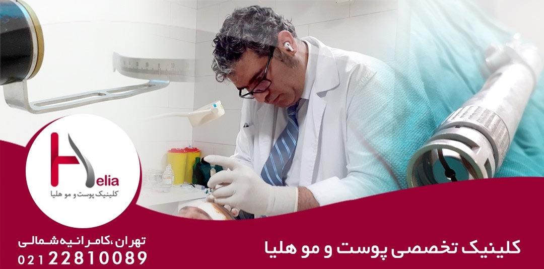 کاشت مو دکتر خراسانی