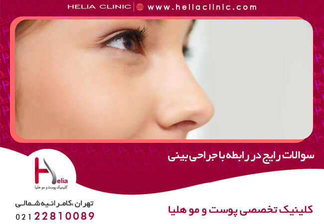 سوالات رایج در رابطه با جراحی بینی