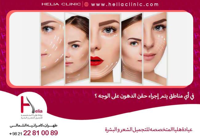 في أي مناطق يتم إجراء حقن الدهون على الوجه ؟