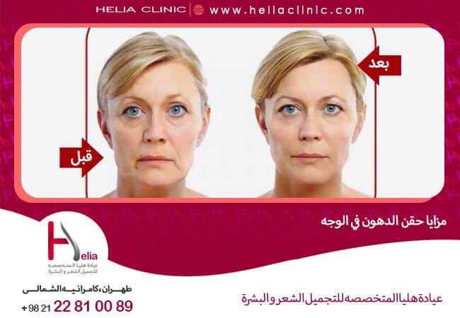 مزايا حقن الدهون في الوجه