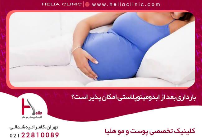 تصویر از بارداری بعد از ابدومینوپلاستی امکان پذیر است؟