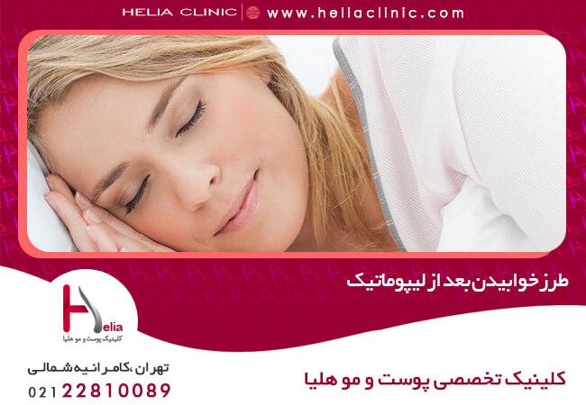 طرز خوابیدن بعد از لیپوماتیک