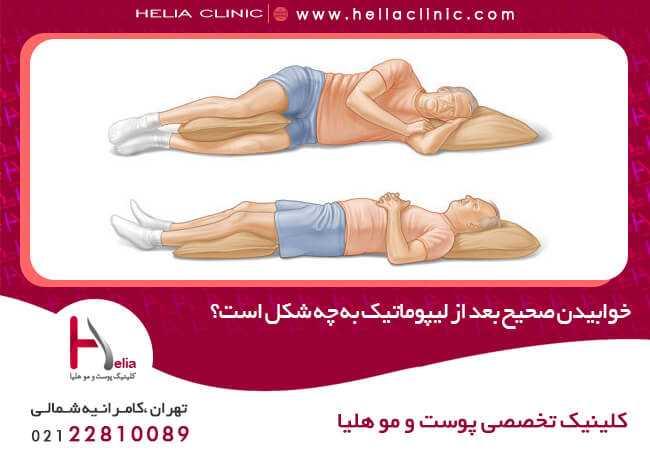 خوابیدن صحیح بعد از لیپوماتیک