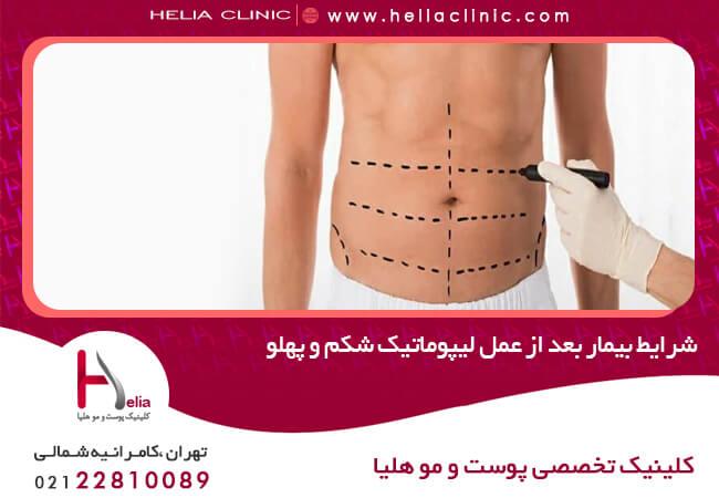 شرایط بیمار بعد از عمل لیپوماتیک شکم و پهلو