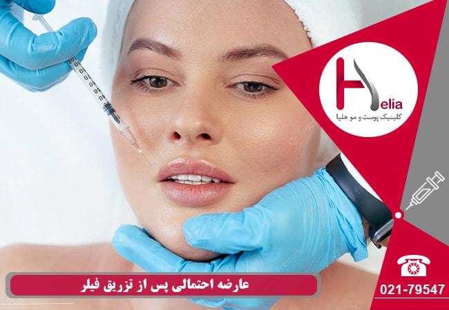 عوارض جانبی متداول تزریق ژل