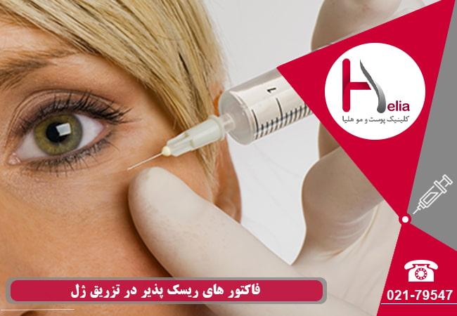 فاکتور های ریسک پذیر در تزریق ژل
