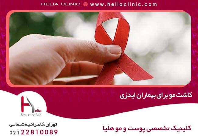 تصویر از کاشت مو برای بیماران ایدزی