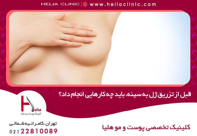قبل از تزریق ژل به سینه، باید چه کارهایی انجام داد؟