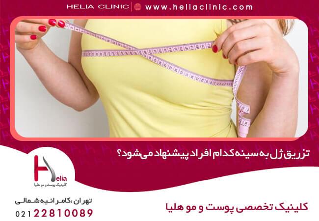 تصویر از تزریق ژل به سینه به کدام افراد پیشنهاد میشود؟