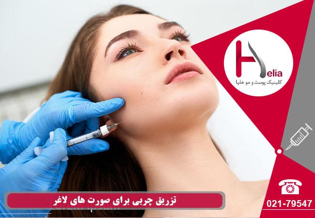 تزریق چربی برای صورت های لاغر