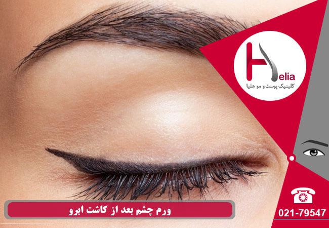 تصویر از ورم چشم بعد از کاشت ابرو – علت و نحوه درمان آن