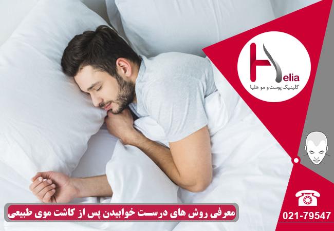 اهمیت خوابیدن صحیح بعد از کاشت مو