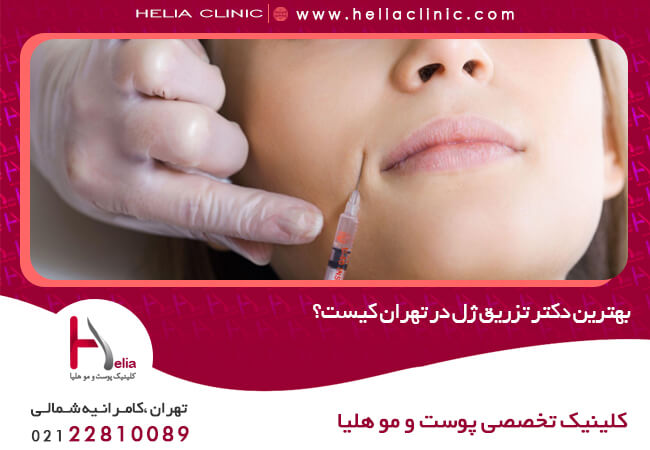 بهترین دکتر تزریق ژل در تهران