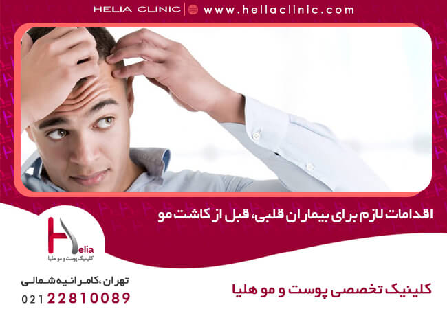 Necessary measures for heart patients before hair transplantation